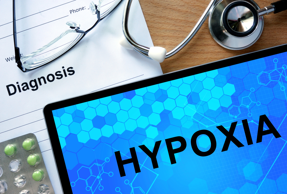 'Happy' Hypoxia: The Silent Sinister